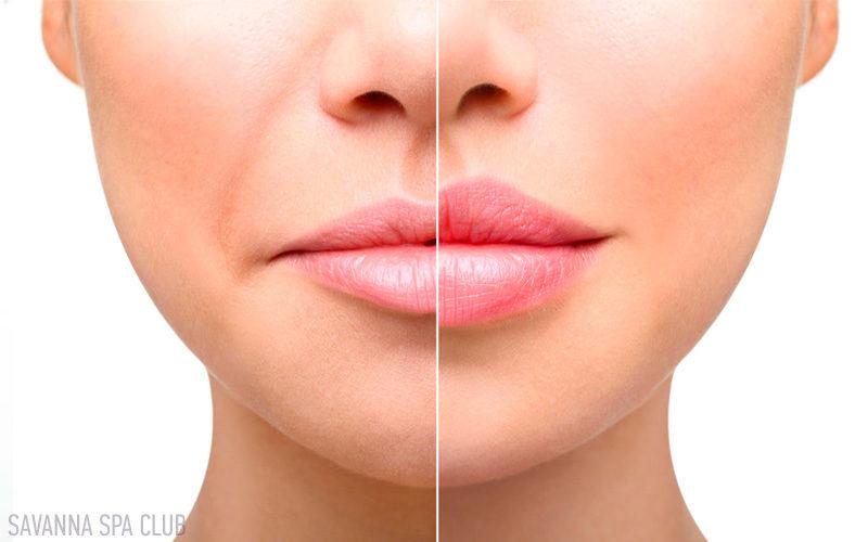 збільшення губ, контурна пласитка