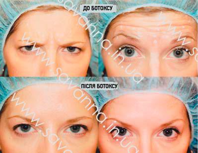 ботокс обличчя - фото до та після процедури ботоксу