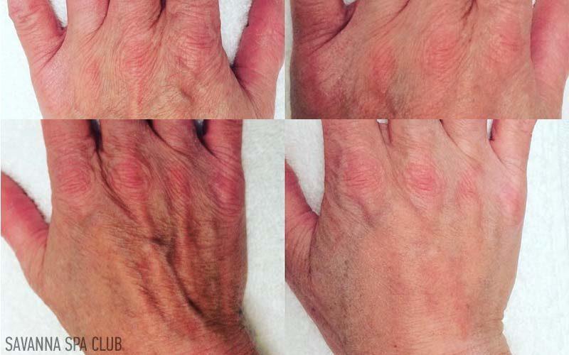 результат мезотерапії рук
