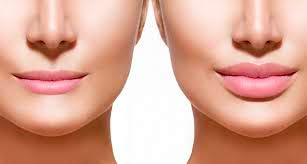 збільшення губ процедурою контурної пластики (фото до і після процедури)