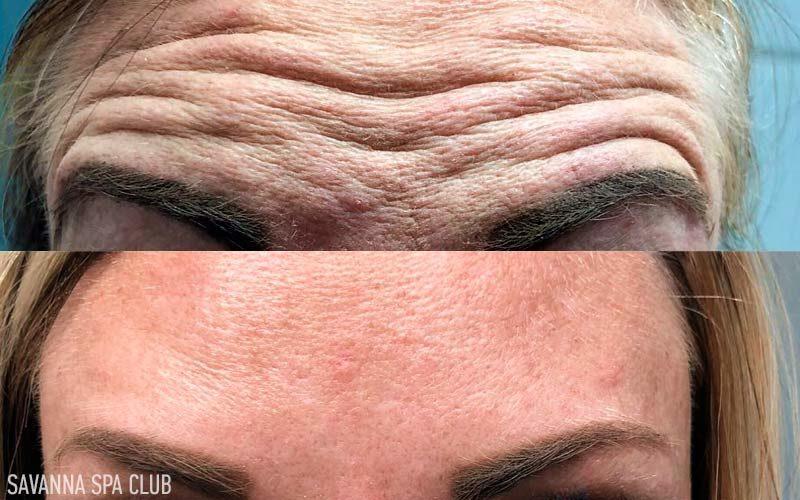 ботокс чола - до та після процедри