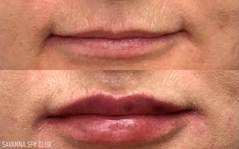 корекція об`єму губ до/після процедури