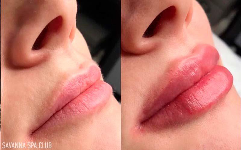 збільшення губ і корекція контуру (до/після)