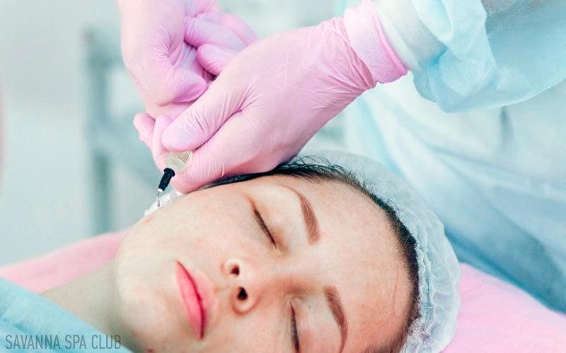 нанесення пілінгу на шкіру обличчя
