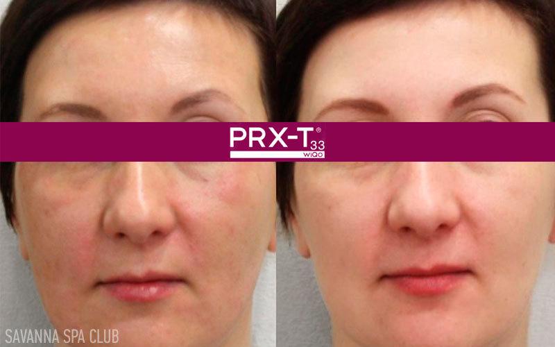 пілінг PRX до та після 5 сеансів