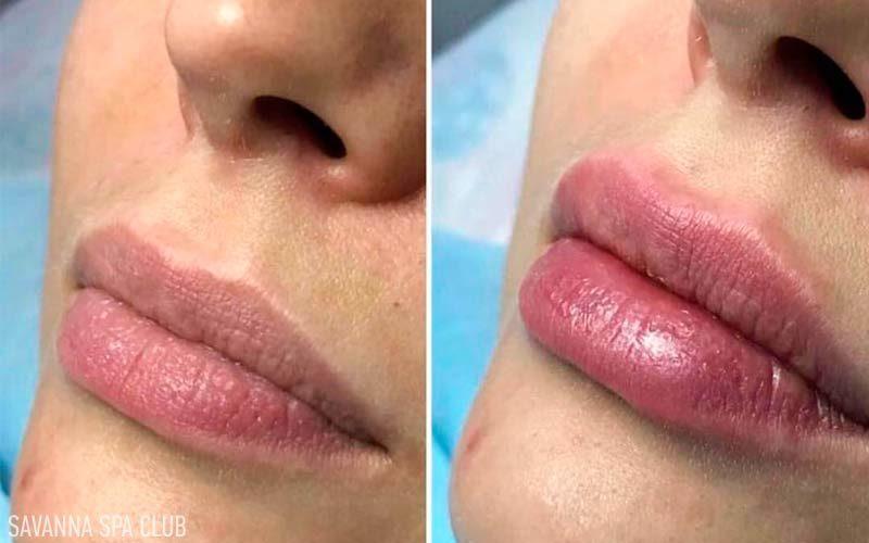 збільшення губ - фото до та після процедури