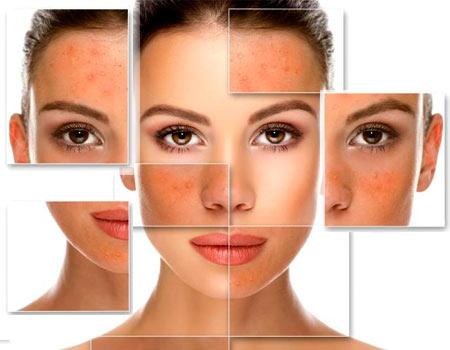 пілінг обличчя, фрагменти шкіри обличчя до та після