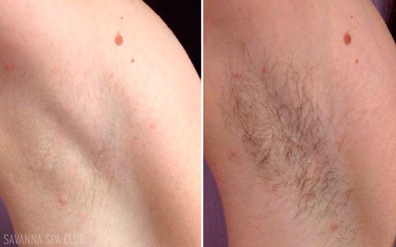 депіляція підмишок, фото до та після процедури