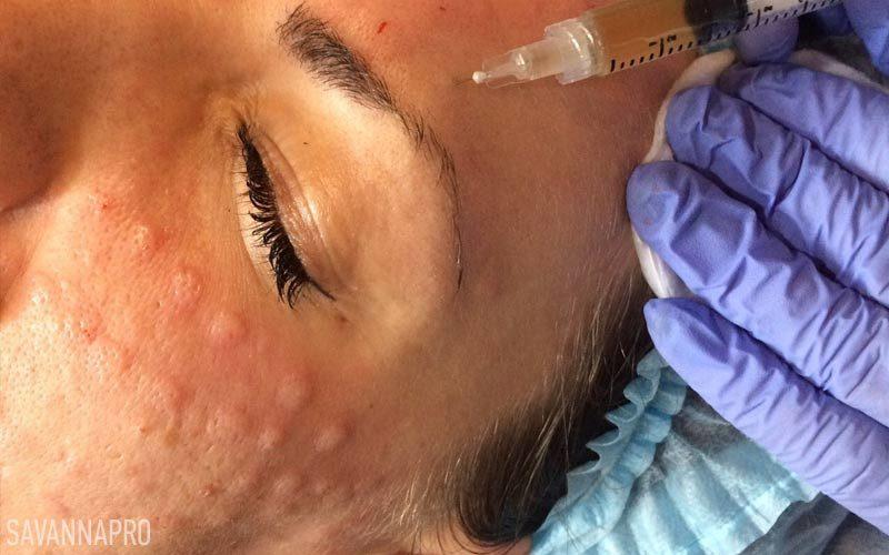 мезотерапія обличчя - навчання ін'єкційним технікам