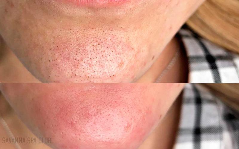 чистка обличчя підборіддя до/після