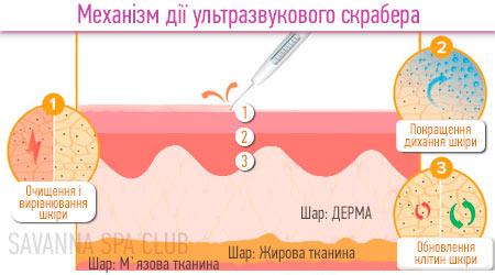 ультразвукова чистка - схема взаємодії на шкіру