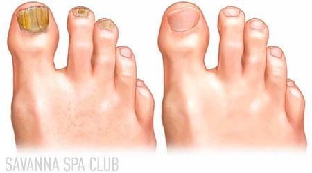 грибок нігтів нігтів до/після