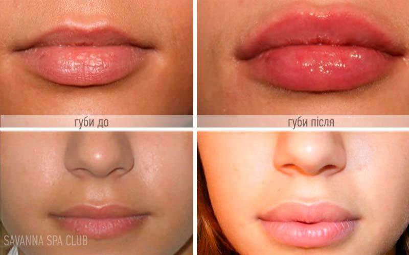 збільшення губ до/після, робота косметолога