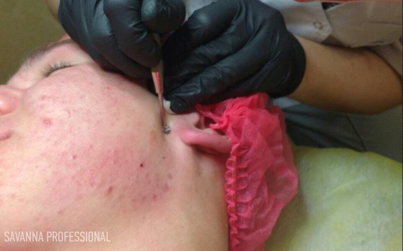 чистка обличчя ложечкою Уно на курсах косметології