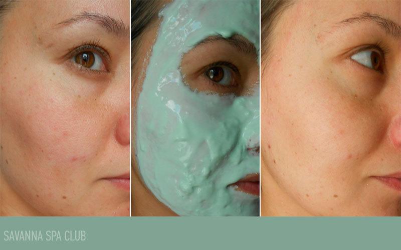 альгінатна маска до/після