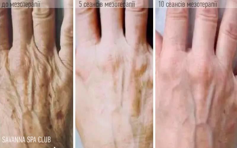 косметолог - мезотерапія рук
