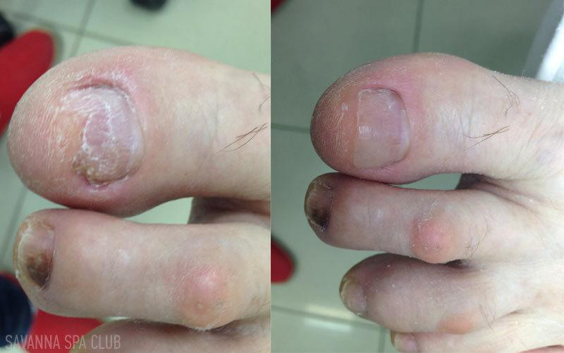 протезування нігтів із грибком