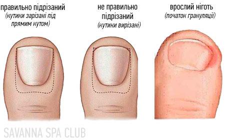 схема - причина врослого нігтя