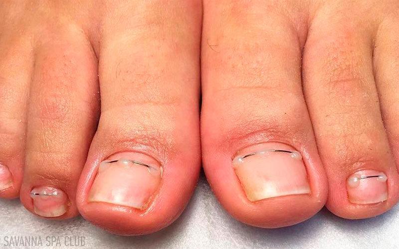 титанові ниті на вростаючі нігті