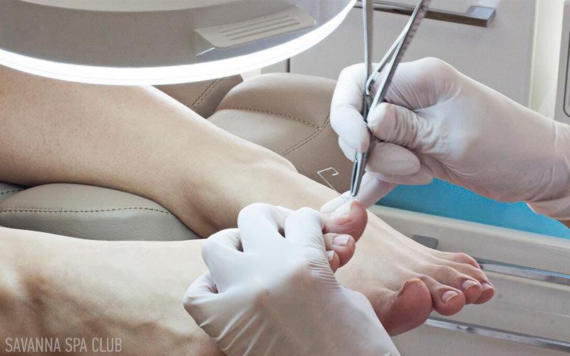 лікування врослого нігтя в Івано-франківську