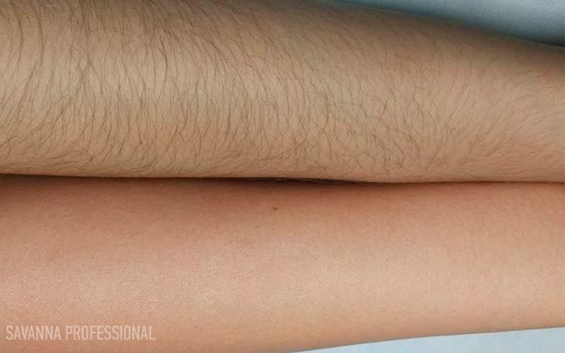 рука до/після депіляції